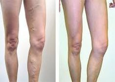 need a way to treat varicose veins without surgery? Go to the website in this submission to learn exactly how varicose veins Varicose Veins Causes, Varicose Vein Removal, Varicose Vein Remedy, Varicose Veins Treatment, Nail Treatment, Low Carb Cookies, Arteries And Veins, Detox, Body Fitness