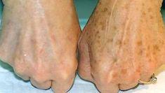 Znany dermatolog ujawnił, jak usunąć brązowe plamy z twarzy i ciała, stosując ten prosty trik! – Lolmania.pl – Najciekawsze artykuły w sieci