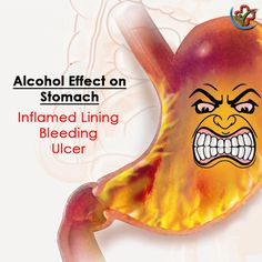 Effects of alcohol on Stomach Effects Of Drinking Alcohol, Side Effects, Health Care, Alcoholic Drinks, Technology, Tech, Alcoholic Beverages, Tecnologia, Liquor