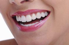 كنزى: إصفرار الأسنان.. وطرق تبييضها