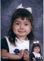 Leyda was born on 2005 with HLHS, a hypoplastic right lung and various other cardiac anomalies. She was prenatally diagnosised. Leyda came to us in 2006, at 17months old. Our adoption was final in 2008. She had her first 2 surgeries and g-tube placement, essentially alone. For her 3rd (Fontan) we stayed in the hospital with her every day....all 103 days. She suffered a stroke in the 24 hours following the Fontan, but eventually recovered 95%. She was able to get off oxygen and g-tube feeds…