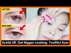 Eyelids Sagging Exercises & Massage to Get Bigger Looking, Youthful Eyes, Tighten droopy eyelids. - YouTube Hooded Eyelids, Droopy Eyelids, Neck And Shoulder Exercises, Eyelid Lift, Bigger Eyes, Best Skin Care Regimen, Home Remedies For Skin, Face Exercises, Face Yoga