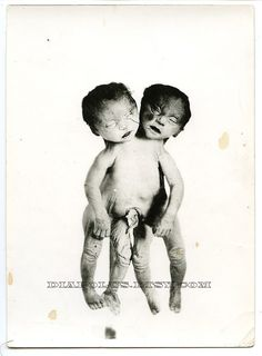 conjoined twins  FOR PEOPLE STEALING FROM ME AND GETTING PREGNANT WHILE, AFTER OR STEALING MY FERTILITY OR ANYTHING.