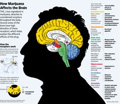 Medical marijuana and how it affects the brain.