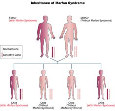 Marfan syndrome is a rare, inherited disorder of connective tissue – tissue holds all the parts of the body together and helps control growth. Syndrome De Marfan, Body Grow, Dna Results, Child And Child, Genetics, Disorders, Children, Exercise, Writing