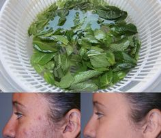 Wow Miracle Homemade Scar Remove Acne and Dark Spots From Your Face