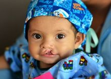 Children's charity for cleft lip and cleft palate surgeries - Operation Smile Dental Health, Dental Care, Sedation Dentistry, Cleft Lip, Dental Center, A Child Is Born, Childrens Hospital, Children In Need, Orthodontics