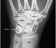 Wrist Bones, Palmar side of right hand