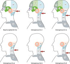 Referral patterns of cervical structures by location. The more cephalad the site of stimulation, the more likely that pain is referred to distant regions of the head. The numbers indicate the percentage of individuals who reported pain in the area shown after stimulation at each segmental level. The arrows indicate the approximate site of stimulation.
