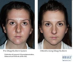 Obagi Nu Derm System before and after.   eyelid surgery, cosmetic surgeon, blepharoplasty, eye-lift