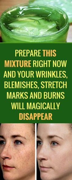 Natural Remedies For Skin Prepare this mixture right now and your wrinkles, blemishes, stretch marks and burns will magically disappear Natural Health Tips, Natural Healing, Natural Skin Care, Natural Makeup, Healing Oils, Natural Beauty, Aloe Vera Maske, Beauty Secrets, Beauty Hacks