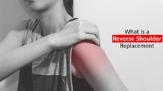 What Is A Reverse Shoulder Replacement? Visit:https://goo.gl/KrcjFe  #MaxCureHospitals #MaxCure #ShoulderPain #Pain #ReverseShoulderReplacement #Surgery #ReverseShoulderReplacementSurgery #ConsultExperts #Hyderabad
