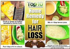 Hair Loss Tips & Tricks ~ hair loss home remedy using amla or indian gooseberry Top 10 Home Remedies, Home Remedies For Hair, Natural Remedies, Herbal Remedies, Hair Remedies For Growth, Hair Loss Remedies, Hair Growth, Natural Hair Loss Treatment, Natural Treatments
