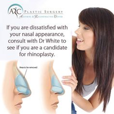 Looking for nose surgery?Dr White's consistent goal is to achieve a beautiful and functional nose that fits within each patient's aesthetic and ethnic ideals.