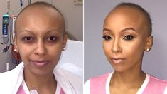 This makeup artist with alopecia travels the country to give free makeovers to cancer patients.