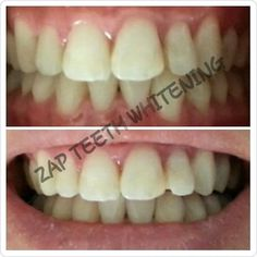 ZAP TEETH WHITENING .....from $55. Click on our website to book an appointment : www.zapteethwhitening.com.au #zapteethwhitening #brisbaneteethwhitening #brisbane #teethwhitening #watchfreenetflix #beforeandafter #happycustomers by zapteethwhitening Our Teeth Whitening Page: http://www.myimagedental.com/services/cosmetic-dentistry/teeth-whitening/ Other Cosmetic Dentistry services we offer: http://www.myimagedental.com/services/cosmetic-dentistry Google My Business…