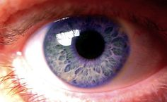 Rare Human Eye Color. Genetic mutation.