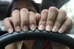 Le unghie si sfaldano per motivi di diversa natura. Esistono numerosi rimedi naturali per il problema