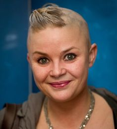 Gail Porter, Scottish born presenter, based in London. via Celebs with Alopecia Areata