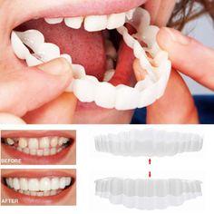 Teeth Braces, Dental Teeth, Dental Care, Natural Teeth Whitening, Charcoal Teeth Whitening, Smile Whitening, Charcoal Toothpaste, Whitening Kit, Perfect Smile Teeth