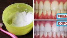 nessuna Source by Teeth Whitening Procedure, Teeth Whitening Remedies, Charcoal Teeth Whitening, Tooth Sensitivity, Receding Gums, Oil Pulling, Cosmetic Dentistry, Nutrition Plans, Vaseline