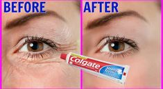 Step 1 – Pack For this you will need A plain toothpaste, do not use any gel based toothpaste (Use plain colgate) Tomato juice Vitamin E capsule Aloe vera gel First in a clean bowl take half spoon … Home Remedy To Erase All Aging Signs From Your Face M Beauty Tips For Face, Beauty Skin, Health And Beauty, Beauty Hacks, Beauty Care, Face Tips, Sara Beauty, Dermaroller, Stronger Teeth