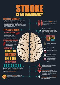 Stroke is an emergency  Know the two types of stroke. There are two major kinds of stroke, ischemic and hemorrhagic.