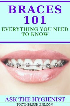 Find out everything you need to know about dental teeth braces and this complete guide. Type of braces, price of braces, what to avoid with teeth braces. All about orthodontic Care. Ortho tips. Price Of Braces, Braces Cost, Braces Tips, Braces Bands, Dental Braces, Teeth Braces, Dental Teeth, Dental Hygiene, Dental Care
