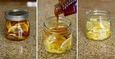Wanneer je pijn voelt bij het slikken kan je deze verzachten door het drinken van koude of warme dranken. Het is belangrijk om veel water te drinken, want water helpt afvalstoffen in je lichaam afvoeren.  Naast gewoon water drinken kan je natuurlijk lekkere thee zetten. Kruidenthee is uitermate geschikt voor het behandelen van keelpijn. Vlierbloesem, pepermunt, duizendblad, gember, citroen, kaneel, tijm, kamille, cayennepeper, hysop, salie en honing zijn enkele geschikte ingrediënten voor…