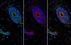 In a new study, researchers have made insights into how the blood-brain barrier, or BBB, is maintained, identifying a protein key to the process. Delivering this protein to mice with the rodent equivalent of MS improved their symptoms.