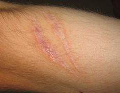 Burn scars are not only ugly to look at, but very often they can be heart-breaking reminders of burn accidents that could have taken place in the past. A scar Home Remedies, Natural Remedies, Health Remedies, Diy Beauty, Beauty Hacks, Beauty Tips, Beauty Care, Tea Tree Oil Uses, Getting Rid Of Scars