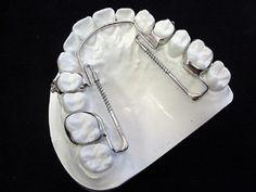 IPC SAGITTAL | Maxillary Moloar Distalizer. Applies pressure to anterior teeth to move them labially.