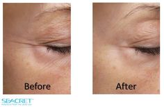 Come find out the powerful results of the recover mask and other age defying products! Seacretdirect.com/abeeby