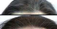 Incrível remédio caseiro que elimina cabelos brancos - faça e comprove! | Cura pela Natureza