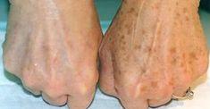 Я - дерматолог. И я знаю только 1 способ избавиться от коричневых пятен на коже