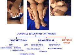 Reactive Arthritis is a type of arthritis that occurs as a result of an infection in the body. When one gets an infection the body reacts by triggering this form of arthritis. Typical infections triggering this form of arthritis are u Juvenile Rheumatoid Arthritis, Yoga For Arthritis, Knee Arthritis, Arthritis Relief, Types Of Arthritis, Arthritis Exercises, Fibromyalgia Treatment, Reactive Arthritis