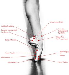 """Feeling some pain? The foot has the largest number of bones in comparison to the rest of the body and so is very prone to many injuries. Here are some of the many injuries dancers experience that result from pointe shoes and theotherrigors of ballet.Sesamoiditis - """"I have pain underneath my big toe, particularly while walking without shoes.""""Hallux Valgus and Bunion - """"My big toe points inward and is painful.""""Hallux Rigidus - """"I have pain with full releve.""""Pl"""