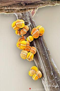 Micrografia eletrônica: bactérias [galeria]