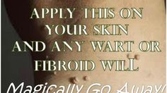 Wart or Fibroid