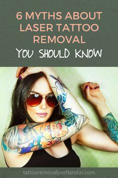 6 Myths about laser tattoo removal you should know.