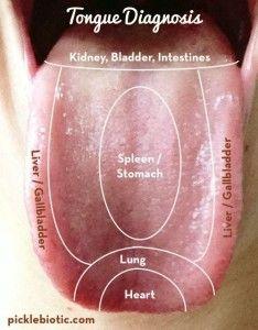 Tongue Diagnosis - A Helpful Self-Diagnosing Technique - Pickle-Biotic