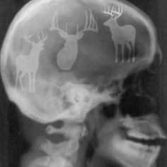Whitetail bucks ... X-ray of my head