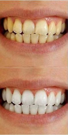 watch your smile light a room up again, whiten your teeth Doin what chu already are. Ap 24 Whitening Toothpaste, Whitening Fluoride Toothpaste, Anti Aging Skin Care, Natural Skin Care, Beauty Skin, How To Lose Weight Fast, Dental, Nu Skin, Room