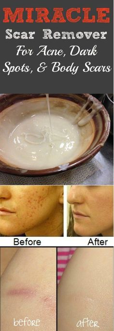 Miracle Homemade Scar Remover For Acne and Dark Spots This Magical DIY scar remover is gravely the best thing to happen since sliced bread – and we take sliced bread very seriously! Anytime we stag…