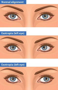9 Best Strabismus Surgery Images On Pinterest Vision Therapy Eyes