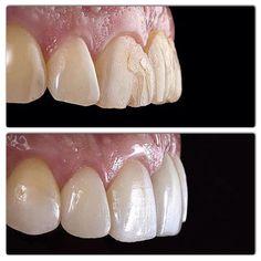 Before and after treatment - Dentistry - Dental Hygiene, Dental Health, Lente Dental, Teeth Makeover, Zoom Teeth Whitening, Dental Aesthetics, Dental Anatomy, Root Canal Treatment, Dental Center