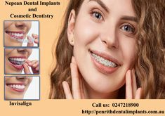 Visit our tooth implants Blacktown dentistry, here we give all types of treatment with how to care for dental tips. Our implant dentistry has experience dentist give the best treatment method for dental care for a long time. Cosmetic Dental Surgery, Cosmetic Dentistry, Teeth Implants, Dental Implants, Implant Dentistry, Penrith, Dental Crowns, Dental Care, Teeth Whitening