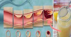 Cea mai puternica reteta care iti curata arterele de colesterol!