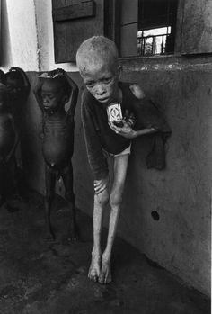 ░▒▓ Don McCullin, a hard photo to look at! Dear God I pray for the blessed children and all like them. Keep them under your care.