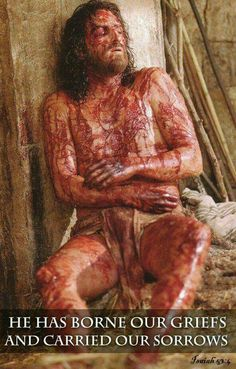 Wounds of Jesus Jesus Our Savior, Heart Of Jesus, Jesus Is Lord, Jesus Christ Images, Jesus Art, La Passion Du Christ, Jesus E Maria, Christian Warrior, Crucifixion Of Jesus